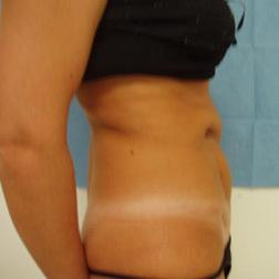 Chirurgia plastica addome, intervento di addominoplastica, caso 11 - Prima