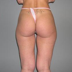 Chirurgia plastica gambe e glutei, intervento di vibroliposcultura - gambe e glutei, caso 12 - Prima