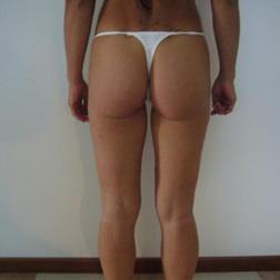 Chirurgia plastica gambe e glutei, intervento di vibroliposcultura - gambe e glutei, caso 12 - Dopo