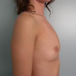 Chirurgia plastica seno, intervento di mastoplastica additiva, caso 18 - Prima