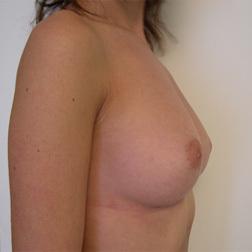 Chirurgia plastica seno, intervento di mastoplastica additiva, caso 18 - Dopo