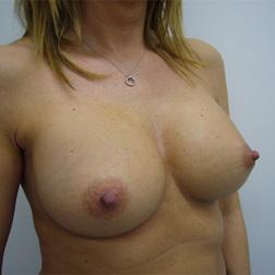 Chirurgia plastica seno, intervento di mastoplastica additiva, caso 20 - Dopo
