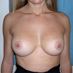 Chirurgia plastica seno, intervento di mastoplastica additiva, caso 21 - Dopo