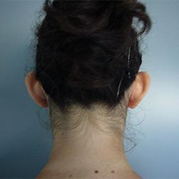 Chirurgia plastica viso, intervento di otoplastica, caso 37 - Prima