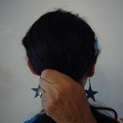 Chirurgia plastica viso, intervento di otoplastica, caso 37 - Dopo
