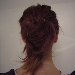 Chirurgia plastica viso, intervento di otoplastica, caso 38 - Dopo