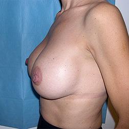 Chirurgia plastica seno, intervento di mastopessi con protesi, caso 48 - Dopo