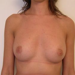 Chirurgia plastica seno, intervento di mastoplastica additiva, caso 17 - Dopo