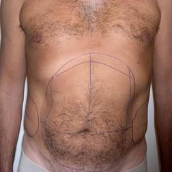 Chirurgia plastica addome, intervento di vibroliposcultura - addome, caso 65 - Prima