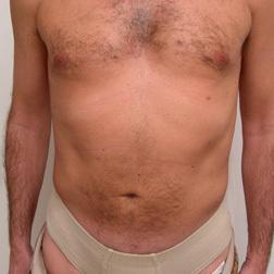 Chirurgia plastica addome, intervento di vibroliposcultura - addome, caso 65 - Dopo