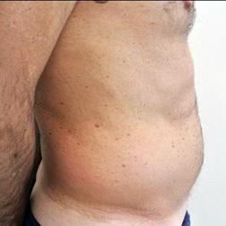 Chirurgia plastica addome, intervento di vibroliposcultura - addome, caso 67 - Prima