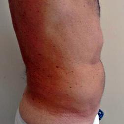 Chirurgia plastica addome, intervento di vibroliposcultura - addome, caso 67 - Dopo