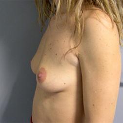 Chirurgia plastica seno, intervento di mastoplastica additiva, caso 71 - Prima