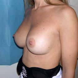 Chirurgia plastica seno, intervento di mastoplastica additiva, caso 71 - Dopo