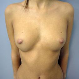 Chirurgia plastica seno, intervento di mastoplastica additiva, caso 75 - Prima
