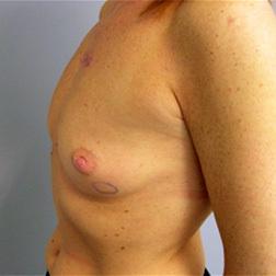 Chirurgia plastica seno, intervento di mastoplastica additiva, caso 76 - Prima