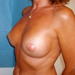Chirurgia plastica seno, intervento di mastoplastica additiva, caso 76 - Dopo