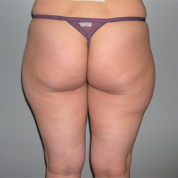 Chirurgia plastica gambe e glutei, intervento di vibroliposcultura - gambe e glutei, caso 88 - Prima