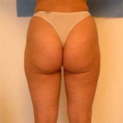 Chirurgia plastica gambe e glutei, intervento di vibroliposcultura - gambe e glutei, caso 88 - Dopo
