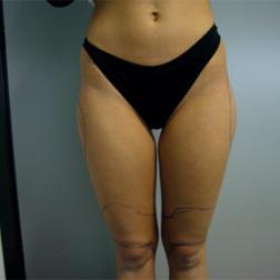 Chirurgia plastica gambe e glutei, intervento di vibroliposcultura - gambe e glutei, caso 99 - Prima