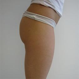 Chirurgia plastica gambe e glutei, intervento di vibroliposcultura - gambe e glutei, caso 100 - Dopo