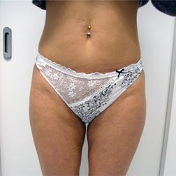 Chirurgia plastica addome, intervento di vibroliposcultura - addome, caso 107 - Dopo