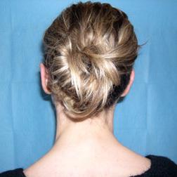 Chirurgia plastica viso, intervento di otoplastica, caso 118 - Dopo