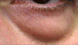 Chirurgia plastica viso, intervento di blefaroplastica, caso 120 - Prima