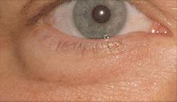 Chirurgia plastica viso, intervento di blefaroplastica, caso 121 - Prima