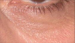 Chirurgia plastica viso, intervento di blefaroplastica, caso 120 - Dopo
