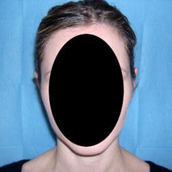 Chirurgia plastica viso, intervento di otoplastica, caso 122 - Dopo