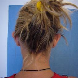 Chirurgia plastica viso, intervento di otoplastica, caso 130 - Prima