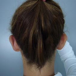 Chirurgia plastica viso, intervento di otoplastica, caso 131 - Prima