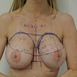 Chirurgia plastica seno, intervento di sostituzione protesi, caso 135 - Prima