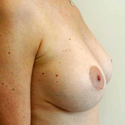 Chirurgia plastica seno, intervento di sostituzione protesi, caso 137 - Dopo