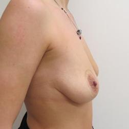 Chirurgia plastica seno, intervento di mastopessi con protesi, caso 138 - Prima