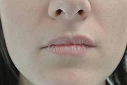 Chirurgia plastica viso, intervento di filler labbra, caso 139 - Prima