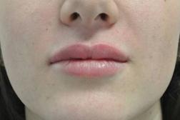 Chirurgia plastica viso, intervento di filler labbra, caso 139 - Dopo