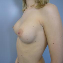 Chirurgia plastica seno, intervento di mastoplastica additiva, caso 140 - Prima