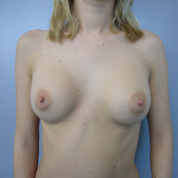 Chirurgia plastica seno, intervento di mastoplastica additiva, caso 141 - Prima