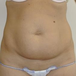 Chirurgia plastica addome, intervento di addominoplastica, caso 144 - Prima
