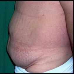 Chirurgia plastica addome, intervento di addominoplastica, caso 146 - Prima