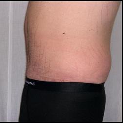 Chirurgia plastica addome, intervento di addominoplastica, caso 146 - Dopo
