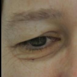Chirurgia plastica viso, intervento di blefaroplastica, caso 148 - Prima