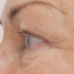 Chirurgia plastica viso, intervento di blefaroplastica, caso 149 - Prima