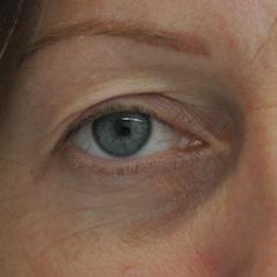 Chirurgia plastica viso, intervento di blefaroplastica, caso 150 - Prima
