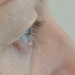Chirurgia plastica viso, intervento di blefaroplastica, caso 151 - Prima