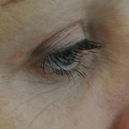 Chirurgia plastica viso, intervento di blefaroplastica, caso 151 - Dopo
