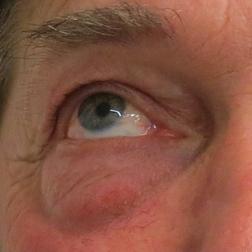 Chirurgia plastica viso, intervento di blefaroplastica, caso 153 - Prima