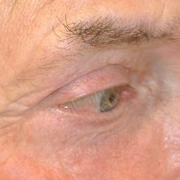 Chirurgia plastica viso, intervento di blefaroplastica, caso 152 - Dopo